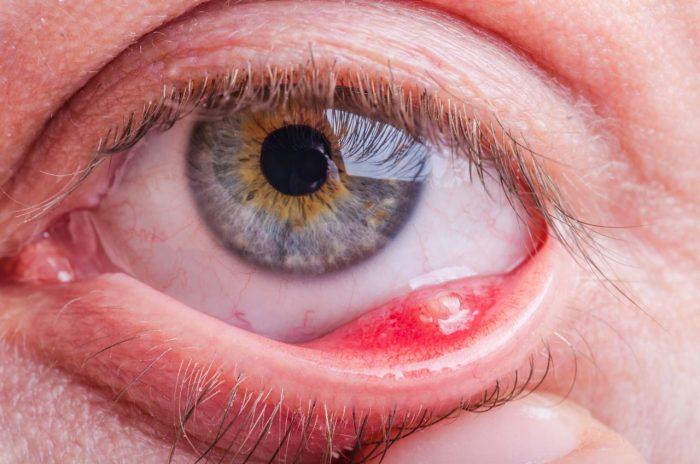 dermatiti-palpebrali